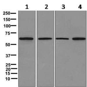 Western blot - Anti-SLC23A3 antibody [EPR11800] (ab170938)