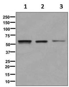 Western blot - Anti-PTEN antibody [EPR9941-2] (ab170941)
