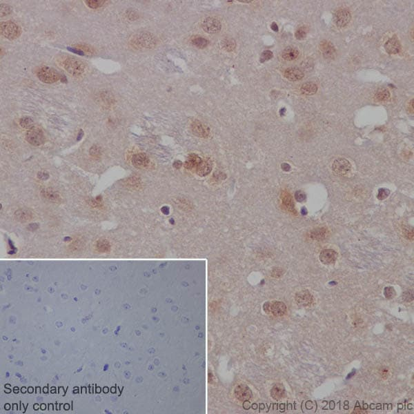 Immunohistochemistry (Formalin/PFA-fixed paraffin-embedded sections) - Anti-PTEN antibody [EPR9941-2] (ab170941)