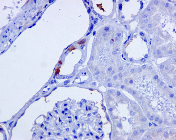 Immunohistochemistry (Formalin/PFA-fixed paraffin-embedded sections) - Anti-C4a antibody [EPR10143] (ab170942)