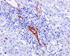 Immunohistochemistry (Formalin/PFA-fixed paraffin-embedded sections) - Anti-CD105 antibody [EPR10145-10] (ab170943)