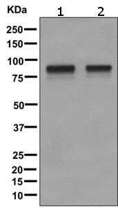 Western blot - Anti-CD105 antibody [EPR10145-10] (ab170943)