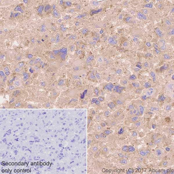 Immunohistochemistry (Formalin/PFA-fixed paraffin-embedded sections) - Anti-Aspartate Aminotransferase + FABP-1 antibody [EPR12145] (ab170950)