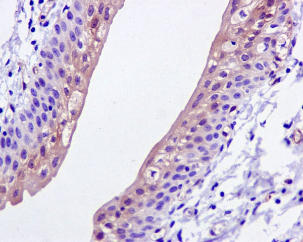 Immunohistochemistry (Formalin/PFA-fixed paraffin-embedded sections) - Anti-ASS1 antibody [EPR12398] (ab170952)