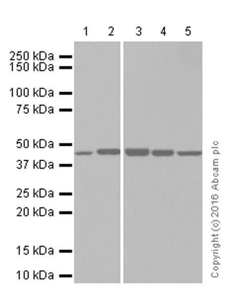 Western blot - Anti-ASS1 antibody [EPR12398] (ab170952)
