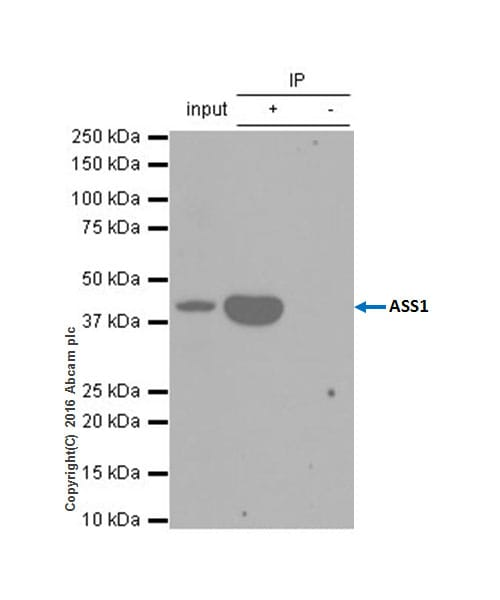 Immunoprecipitation - Anti-ASS1 antibody [EPR12398] (ab170952)
