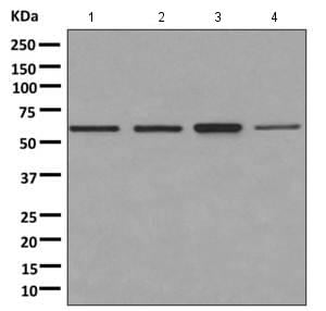 Western blot - Anti-PNK/PNKP antibody [EPR11934(B)] (ab170954)