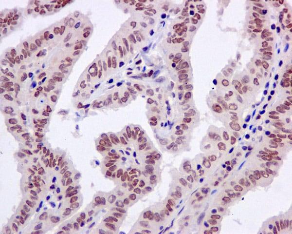 Immunohistochemistry (Formalin/PFA-fixed paraffin-embedded sections) - Anti-PNK/PNKP antibody [EPR11934(B)] (ab170954)