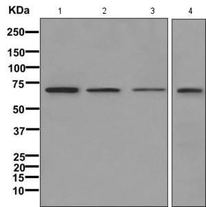 Western blot - Anti-IKZF4 antibody [EPR11804] (ab170957)