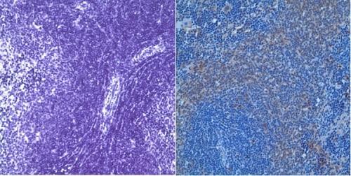 Immunohistochemistry (Formalin/PFA-fixed paraffin-embedded sections) - Anti-Polyethylene glycol antibody [PEG-B-47] - BSA and Azide free (ab170969)