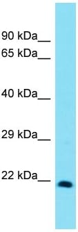 Western blot - Anti-Msx3 antibody - C-terminal (ab170974)