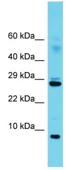 Western blot - Anti-SF3B5 antibody - C-terminal (ab171011)
