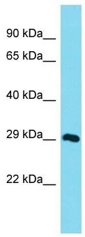 Western blot - Anti-Naca-rs antibody - C-terminal (ab171018)