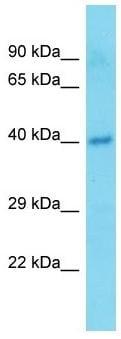 Western blot - Anti-TMEM25 antibody - C-terminal (ab171024)