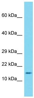 Western blot - Anti-SAA1 antibody (ab171030)