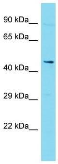 Western blot - Anti-DLK-2 antibody - C-terminal (ab171037)