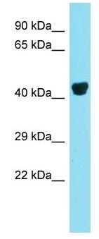 Western blot - Anti-PREB antibody - N-terminal (ab171064)