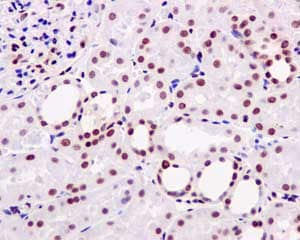 Immunohistochemistry (Formalin/PFA-fixed paraffin-embedded sections) - Anti-MTA2/PID antibody [EPR8537(2)] (ab171073)