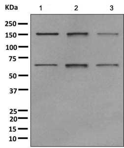 Western blot - Anti-Nup153 antibody [EPR7606(2)(B)] (ab171074)