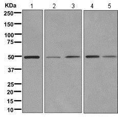 Western blot - Anti-FAM134C antibody [EPR11765] (ab171079)