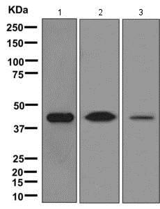 Western blot - Anti-IFN gamma Receptor beta/AF-1 antibody [EPR8813] (ab171081)
