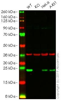 Western blot - Anti-Mad2L1 antibody [EPR9852] (ab171084)