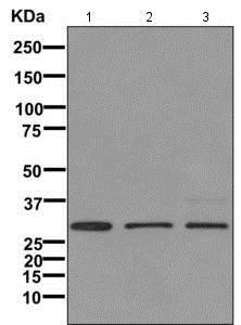 Western blot - Anti-IGFBP7 antibody [EPR11912(B)] (ab171085)