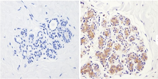 Immunohistochemistry (Formalin/PFA-fixed paraffin-embedded sections) - Anti-eIF2B3 antibody [1H3] (ab171093)
