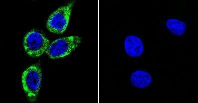 Immunocytochemistry - Anti-CaMKII (phospho T286) antibody [22B1] (ab171095)
