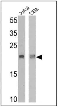 Western blot - Anti-TCR V delta 2 antibody [15D] (ab171103)