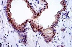 Immunohistochemistry (Formalin/PFA-fixed paraffin-embedded sections) - Anti-GLO1 antibody [Glo1a] (ab171121)