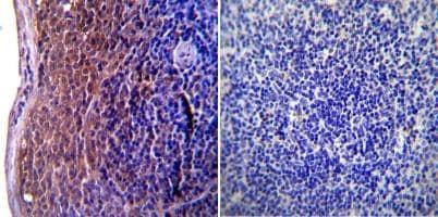 Immunohistochemistry (Formalin/PFA-fixed paraffin-embedded sections) - Anti-ICAM1 antibody [1A29] (ab171123)