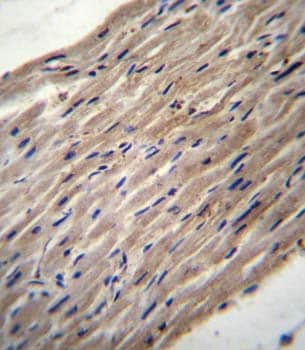 Immunohistochemistry (Formalin/PFA-fixed paraffin-embedded sections) - Anti-LH1 antibody - N-terminal (ab171140)