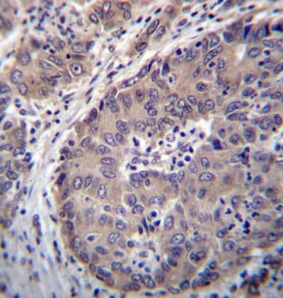 Immunohistochemistry (Formalin/PFA-fixed paraffin-embedded sections) - Anti-PNLIPRP3 antibody - N-terminal (ab171194)