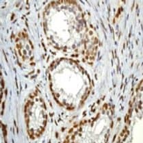 Immunohistochemistry (Formalin/PFA-fixed paraffin-embedded sections) - Anti-STAT3 (phospho Y705) antibody [EP2147Y] - BSA and Azide free (ab171358)
