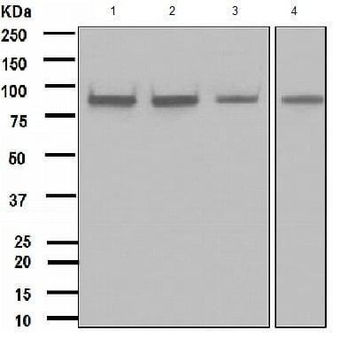 Western blot - Anti-IKK alpha antibody [EPR464] - BSA and Azide free (ab171362)