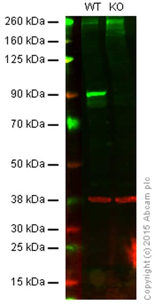 Western blot - Anti-IKK beta antibody [EPR6043] - BSA and Azide free (ab171364)