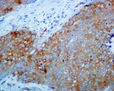 Immunohistochemistry (Formalin/PFA-fixed paraffin-embedded sections) - Anti-IKK beta antibody [EPR6043] - BSA and Azide free (ab171364)