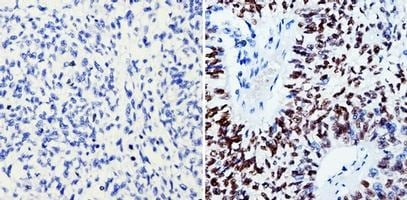 Immunohistochemistry (Formalin/PFA-fixed paraffin-embedded sections) - Anti-SOX2 antibody [20G5] (ab171380)