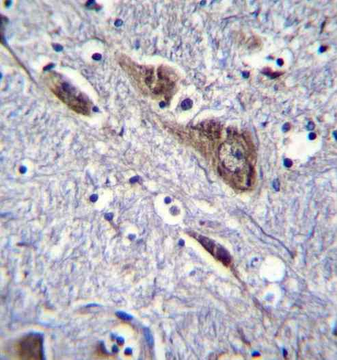 Immunohistochemistry (Formalin/PFA-fixed paraffin-embedded sections) - Anti-ELAVL2 antibody (ab171414)