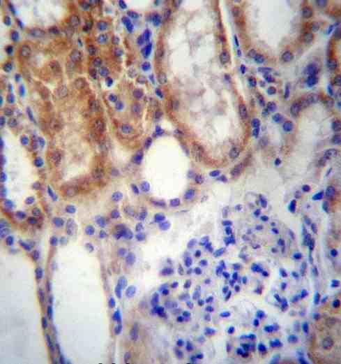 Immunohistochemistry (Formalin/PFA-fixed paraffin-embedded sections) - Anti-SUSD2 antibody - C-terminal (ab171426)