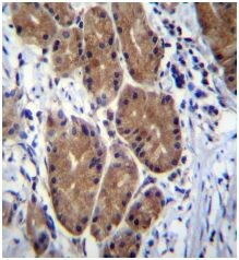 Immunohistochemistry (Formalin/PFA-fixed paraffin-embedded sections) - Anti-zcrb1 antibody - C-terminal (ab171439)