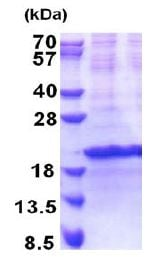 SDS-PAGE - Recombinant Human SIVA protein (denatured) (ab171470)
