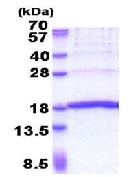 SDS-PAGE - Recombinant Human KHDC1L protein (ab171479)