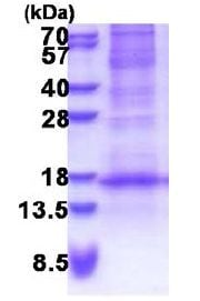 SDS-PAGE - Recombinant Human DEFB116 protein (denatured) (ab171484)