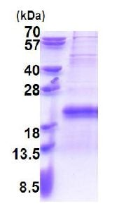 SDS-PAGE - Recombinant Human TXNRD3IT1 protein (ab171493)