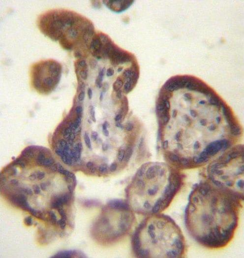 Immunohistochemistry (Formalin/PFA-fixed paraffin-embedded sections) - Anti-hCG beta  antibody - C-terminal (ab171549)