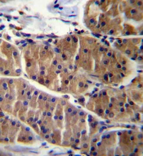 Immunohistochemistry (Formalin/PFA-fixed paraffin-embedded sections) - Anti-LRSAM1 antibody - N-terminal (ab171556)