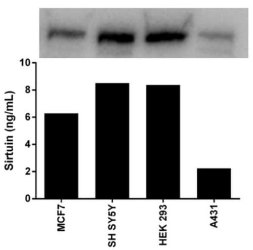 Quantitation of SIRT1 expression in different cell lines