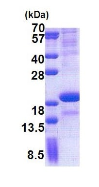 SDS-PAGE - Recombinant Human SCN3B protein (denatured) (ab171585)